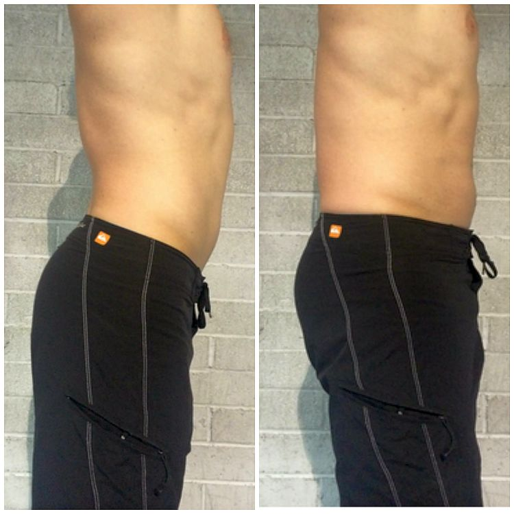 lordosis-lower-back-pain-help, lumbar-support-belt -